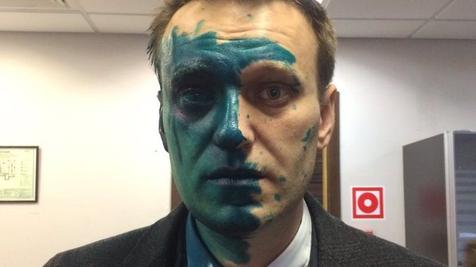 Quiz: Alexei Navalny Was Just Transferred to A Prison Hospital! What Colour Do You Think His Body Is Now?